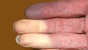 Soğuk Parmakların Belirti Olduğu 5 Hastalık