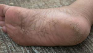 Topuk Çatlakları Ölümcül Hastalığın Belirtisi Olabilir