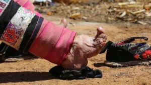 Bu Ülkedeki Kadınlar Güzellik Uğruna Ayaklarını Kırdırtıyor!