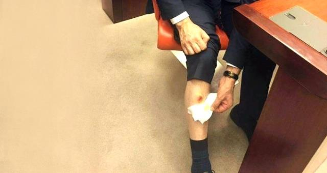 CHP Milletvekili, AK Partili Balta'yı Bacağından Isırdı