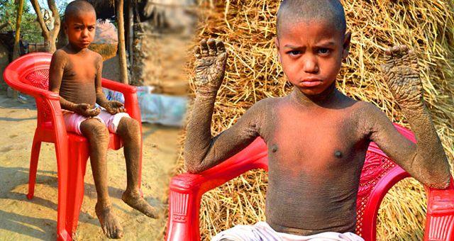 Nadir Görülen Deri Hastalığına Sahip Çocuk Günden Güne 'Taşa' Dönüşüyor