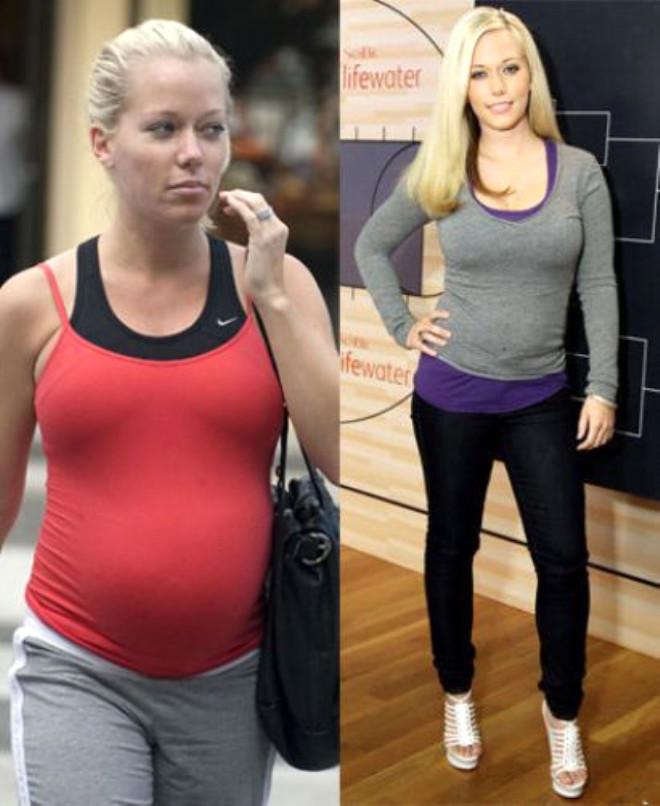 Hamile Ünlülerin Şok Değişimi
