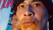 Hükümeti Protesto İçin Ağızlarını Diktiler