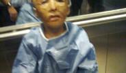 9 Yaşında 32 Kez Ameliyat Oldu