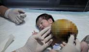 Nur Bebeğin Organları Kesesinde