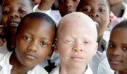 Beyaz Zenci Albinolar