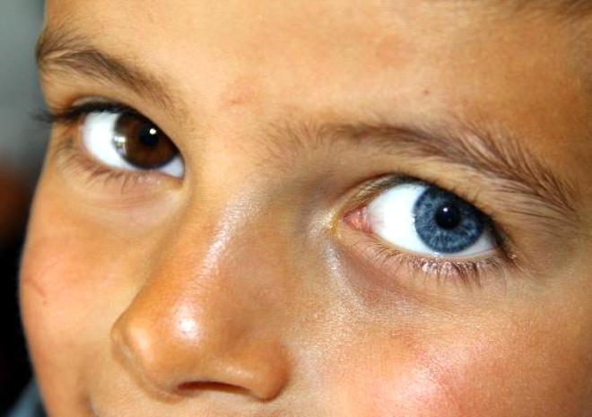 Gözleri İki Farklı Renkte!