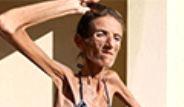 Kadınlar Zayıflamak Uğruna Anoreksiya Hastalığına Yakalanıyor