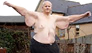 İngiltereli 444 kiloluk Paul Mason 2 yılda Kilolarından Kurtuldu