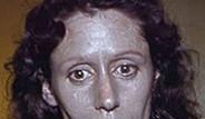 ABD'li Kadının Kullandığı Burun Damlası Yüzünü Gri Yaptı