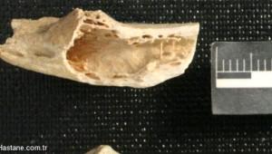 130.000 Yıllık En Eski Tümör