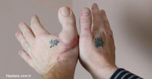 Eline Ayak Parmağını Diktiler