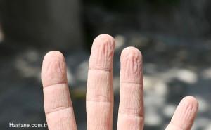 Parmakların Suda Buruşması Mucize