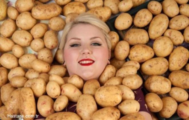 Sadece Patates Yiyor