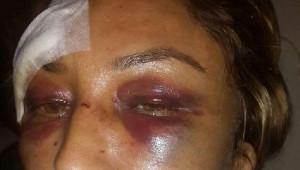 Kadın Emlakçı, Saldırganın Serbest Kalmasına Tepki Gösterdi