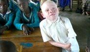 Tanzanya'da Albino İnsanlar Vahşetle Karşı Karşıya