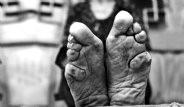 Çin'de Kadınların Ayaklarını Kırıyorlar