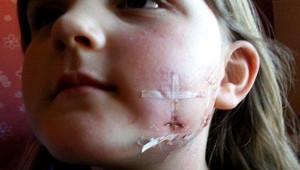 Küçük Köpek, 6 Yaşındaki Kıza Vahşice Saldırdı