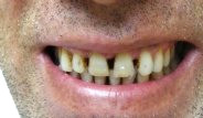 Diş Çürüğü İçin Ne Yapmalıyız