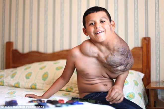 11 Yaşındaki Çocuk Dev Tümörden Kurtuldu