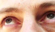 Göz Seğirmesinin Nedenleri ve Sebep Olduğu Hastalıklar