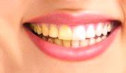 Dişlerinizin Sararmasına Engel Olacak Bilgiler