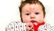 Bebeğin Alnını Gören Şoke Oluyor