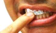 Dişlerinizi Alüminyum Folyo İle Kaplarsanız Ne Olur?