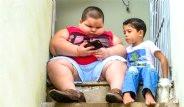 5 Yaşındaki Küçük Çocuk 80 Kiloya Ulaştı