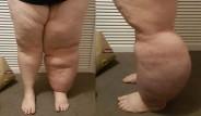 Kanser Tedavisinden Sonra Sol Bacağı 30 Kilo Oldu