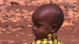 Somali'de 48 Saatte 100 Kişi Açlıktan Öldü