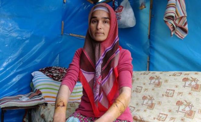 Mersin Bahçede Çalışan Kadına Sokak Köpeği Saldırdı