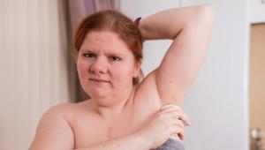 Talihsiz Kadın, Günde 4 Kez Duş Alsa da Balık Gibi Kokuyor