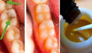 Diş Çürüğü ve Diş Sararmasına Ev Yapımı Karışımla Elveda