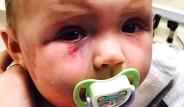 Kızını Öldüresiye Döven Anneye Verilen Ceza Tepki Çekti