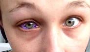 Göz Rengini Değiştirmek İstedi, Körlük Riskiyle Karşı Karşıya Kaldı