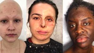 Kaza Geçirmiş İnsanları Bile Makyajla Yeniden Yaratıyor!