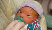 Suratında Deformasyon ve Yaralarla Doğan Bebeğin Hayata Tutunma Öyküsü