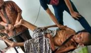 55 Yaşındaki Adamın Geçirdiği Kaza Sonrası Vücudu Taşlaşıyor