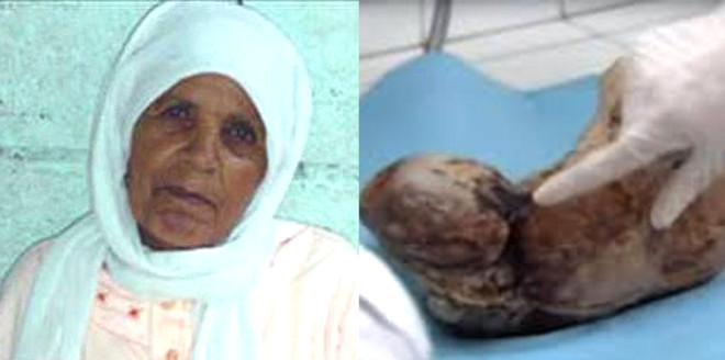 Karnındaki Bebeği 50 Yıl Doğurmadı! İşte Mucizevi Hayatta Kalma Hikayeleri