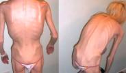 Anoreksiyadan 20 Kiloya Kadar Düşmüştü, Mucizevi Şekilde Hayata Dönüp, Çocuk Bile Doğurdu!
