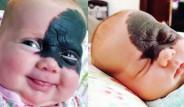 Yüzündeki Doğum Lekesi Yüzünden Herkes Ona Süper Kahraman Batman Diyor