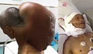 64 Yaşındaki Adamın Boynundan 15 Kiloluk Devasa Tümör Çıkartıldı