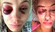 Sevgilisi Tarafından Rehin Alınıp İşkence Edilen Model, Çektiği Selfie Sayesinde Kurtuldu