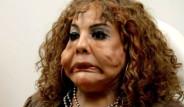 Yüzüne Çimento Enjekte Edilen Kadın, Tanınmaz Hale Geldi