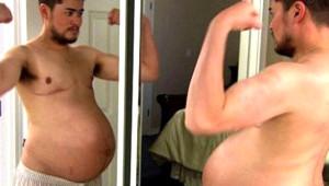 Doğum Yapan İlk Erkekti, Son Hali Şoke Ediyor