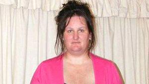 Obez Kadın, Barbie Bebek Olmak İçin Ameliyat Oldu! Son Hali İnanılmaz