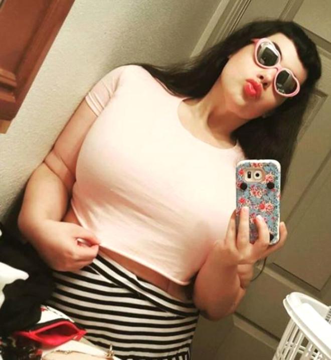 Obezite Hastası Kadın, Erkek Arkadaşıyla Aynı Yatağa Girmek İçin 192 Kilo Verdi!