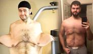 Morbid Obez Hastası Genç 136 Kilo Verdi, Bakın Nasıl Değişti