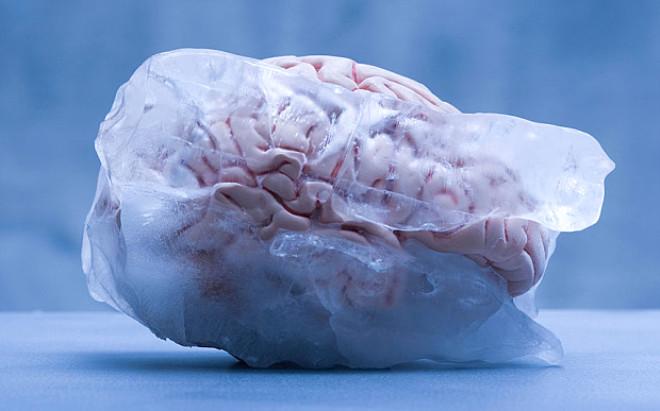 Zenginlerin Yeni Akımı: Beyinlerini Donduruyorlar
